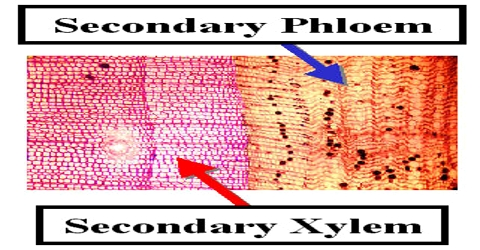 Formation of Secondary Xylem