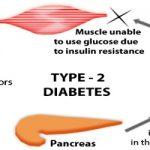 Type 2 Diabetes: Symptoms, Causes and Treatment