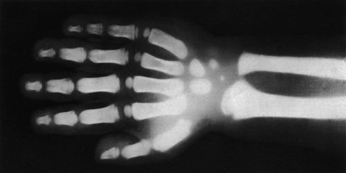 Uses of X-rays