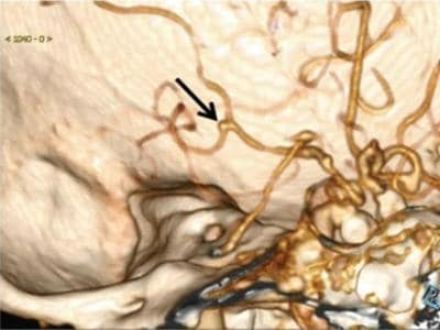 AI Helps Detect Brain Aneurysms On CT Angiography 1