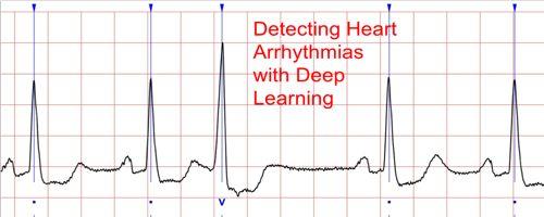 detect the Most Common Cardiac Arrhythmia 1